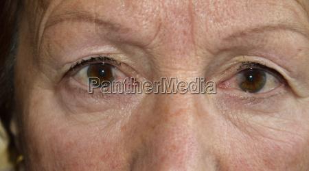 faccia occhio organo occhi malattia augenkrankheit